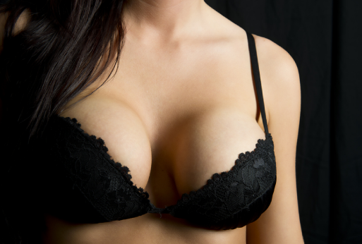 Women in black lace bra after breast augmentation surgery