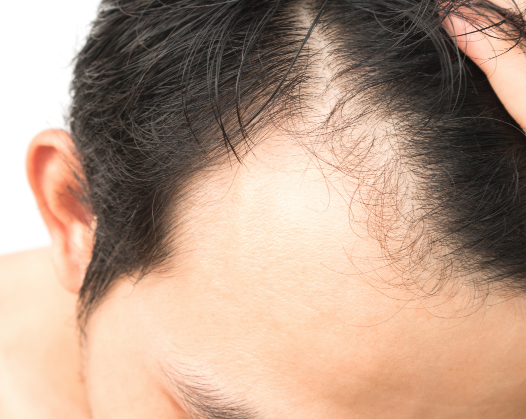 Picture of man's forehead who wants to have a hair transplant surgery to help with baldness