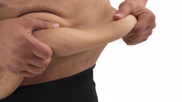 Get rid of excess skin fat after weight loss