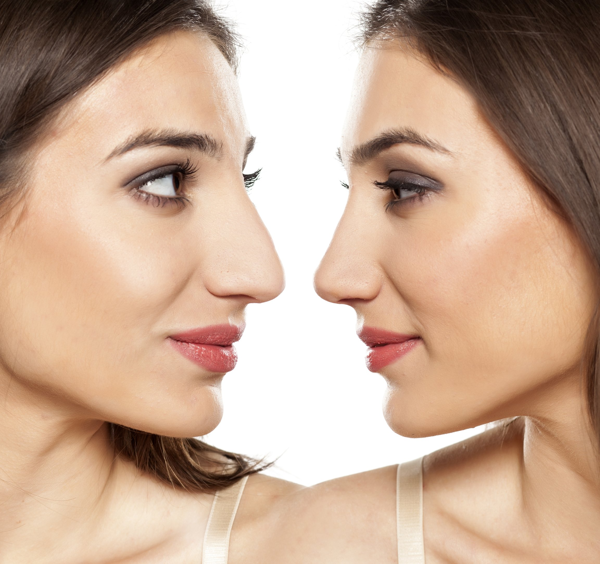 Before and after of tip rhinoplasty